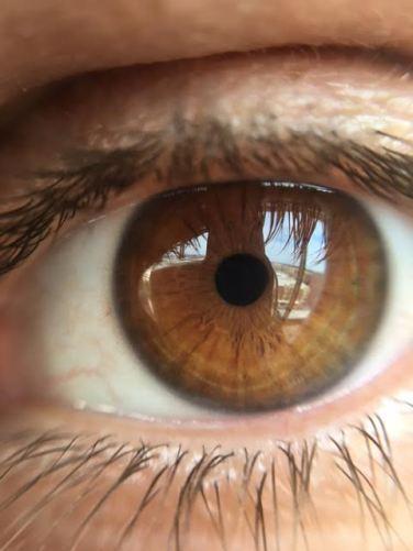 ryan-eye